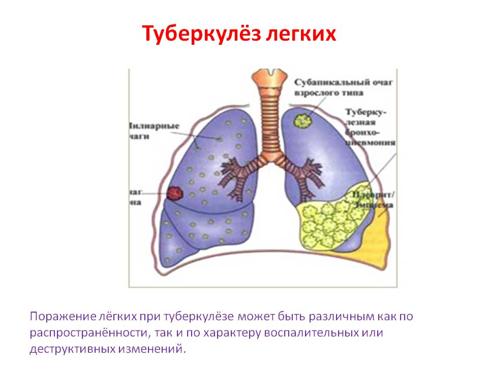 Туберкулез легких с картинками